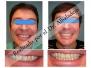 Desviación de todos los dientes superiores hacia la derecha