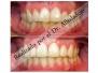 Dientes amontonados (apiñados) moderamente hecho sin quitar dientes