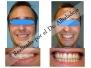 Dientes muy amontonados (apiñados) hechos sin quitar dientes 1