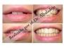 Dientes muy amontonados hecho sin quitar dientes (apiñados) 2