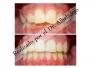 Dientes superiores cubren o solapan en exceso los dientes inferiores 2