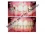 Dientes superiores cubren o solapan en exceso los dientes inferiores