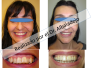 Extracción de dos premolares superiores