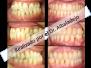 Piorrea o problema periodontal