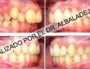 fotos-intraorales-laterales