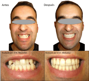 Sonrisas Tratadas